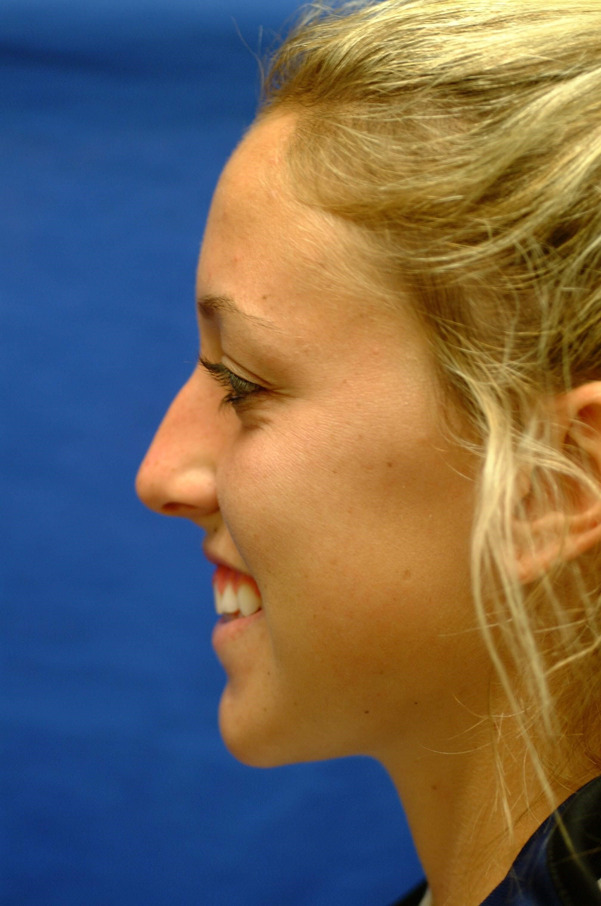 Newport Beach Rhinoplasty Before Smiling