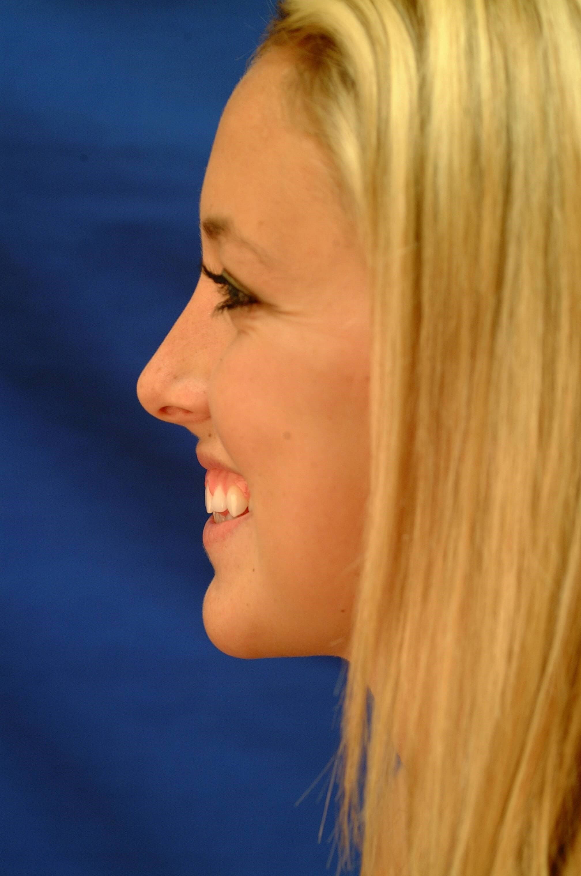Newport Beach Rhinoplasty After Smiling
