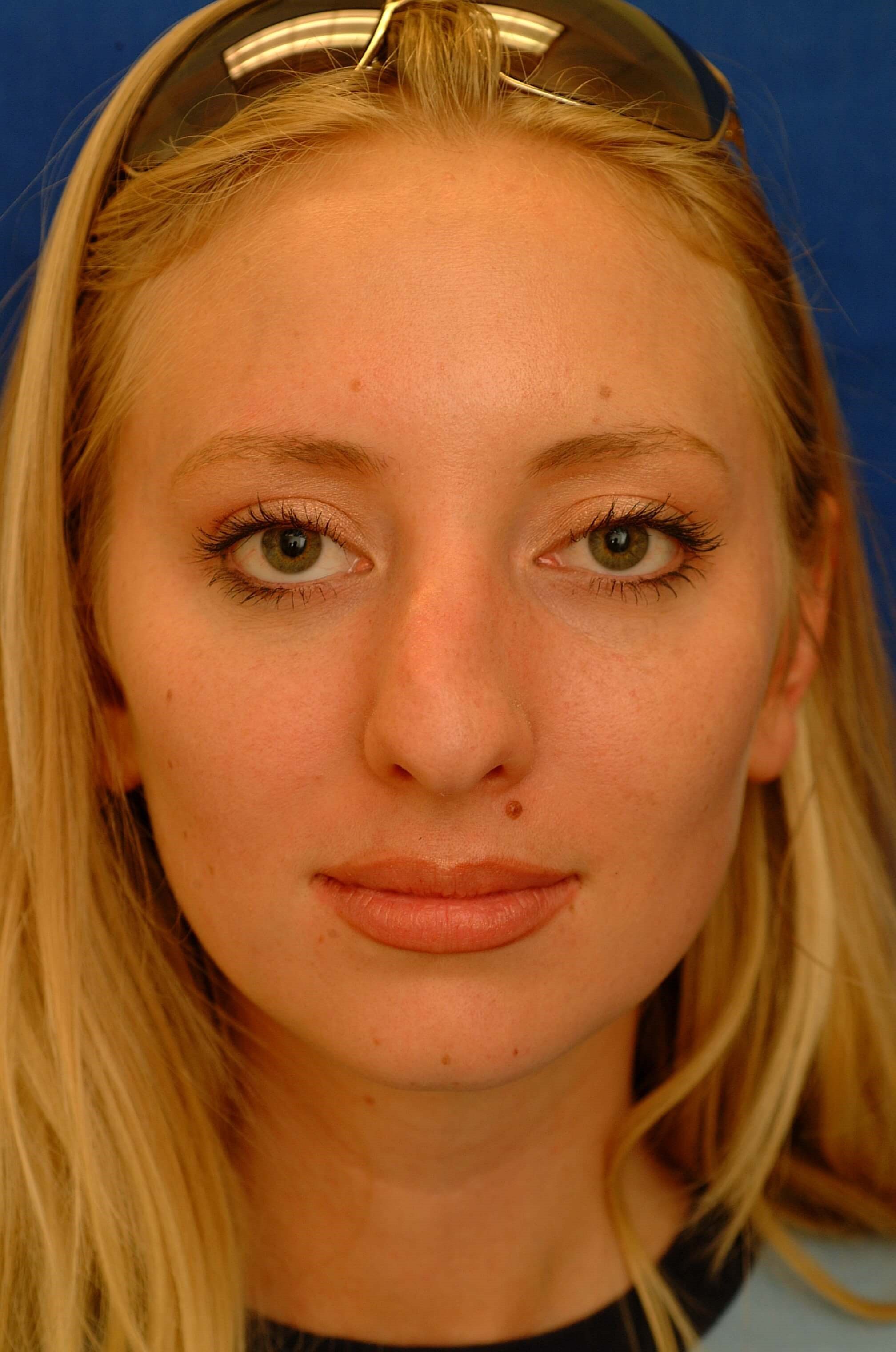 Newport Beach Rhinoplasty Before Front View