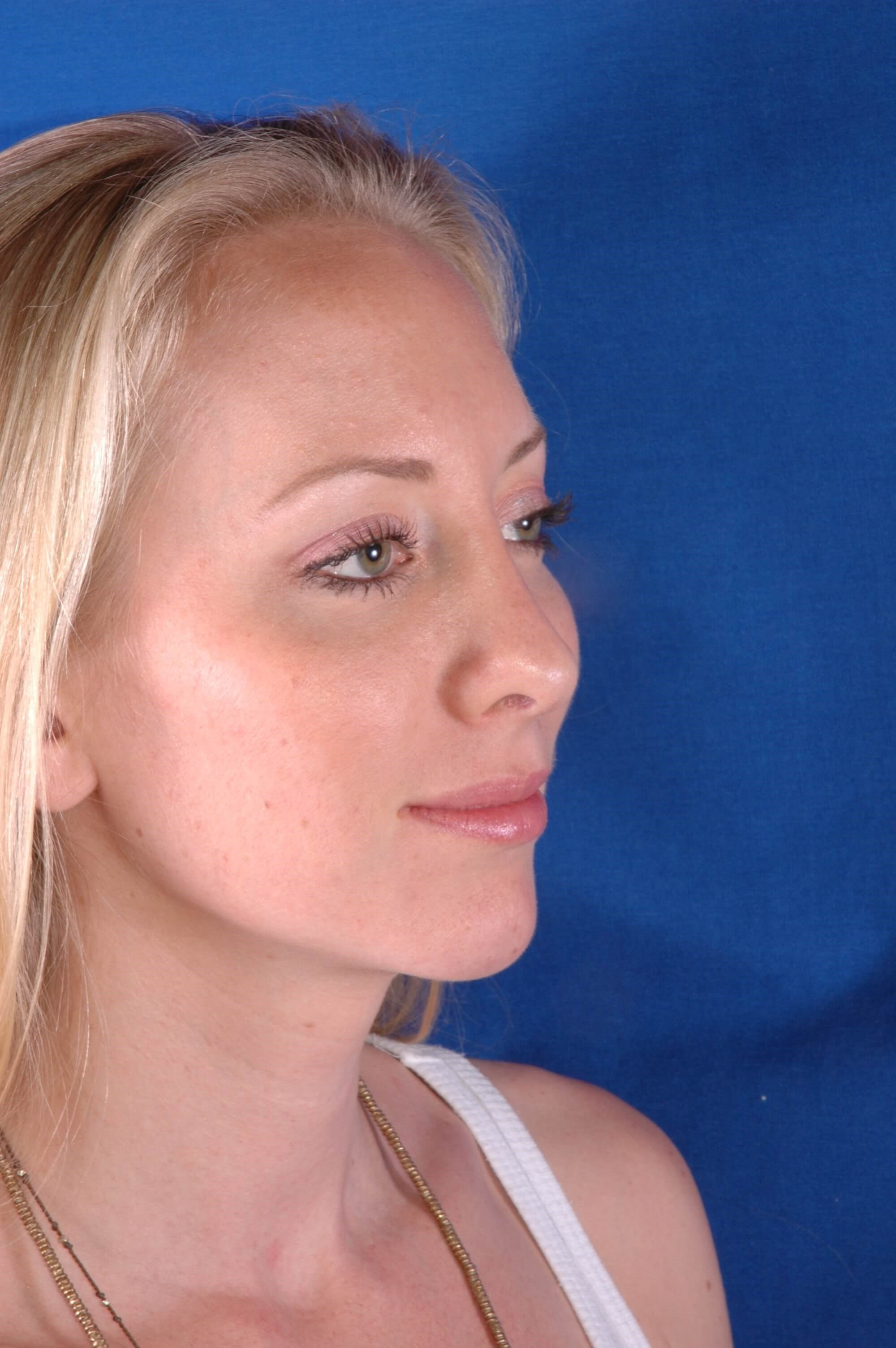 Newport Beach Rhinoplasty Oblique View After