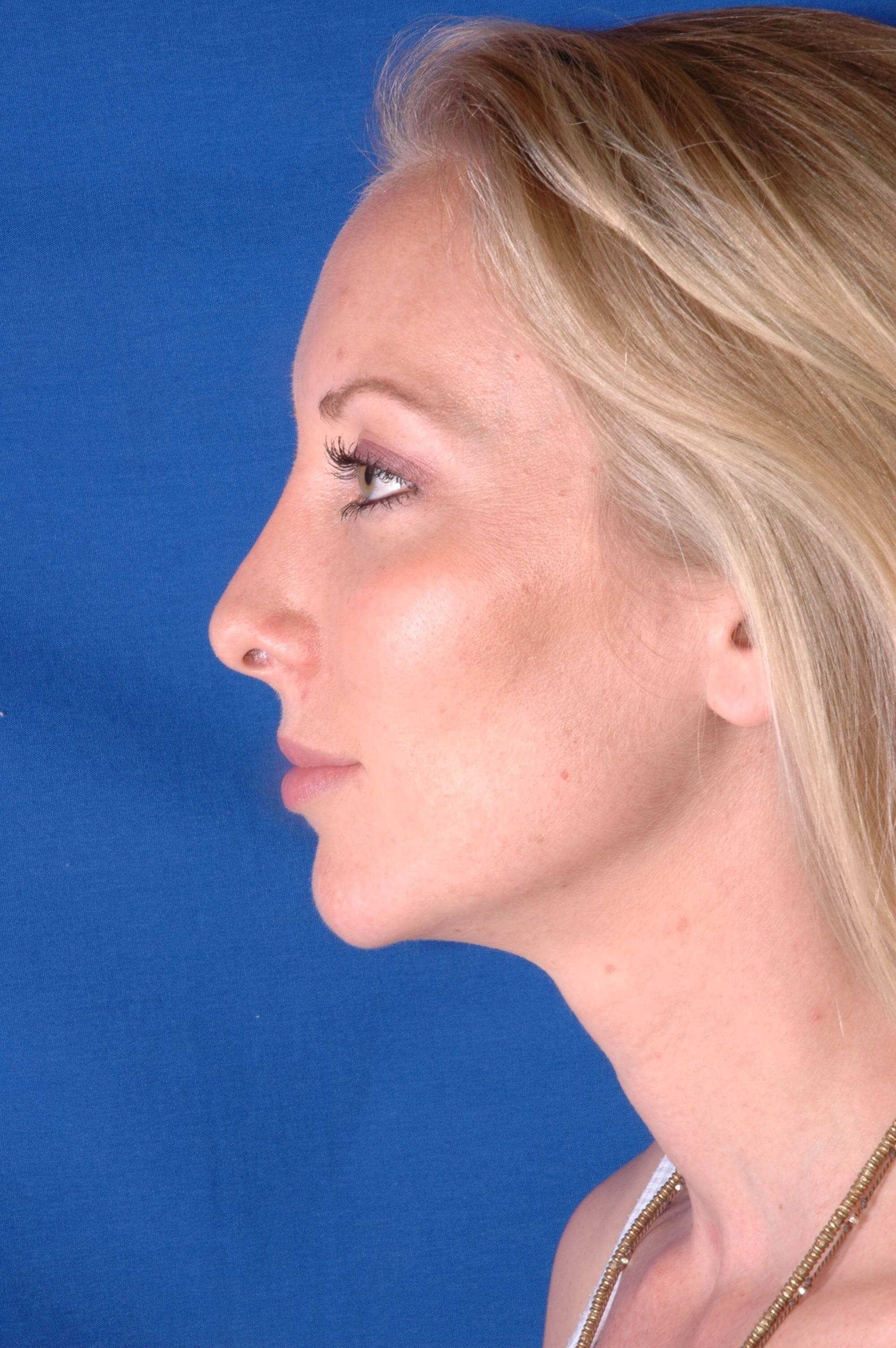 Newport Beach Rhinoplasty Side View After