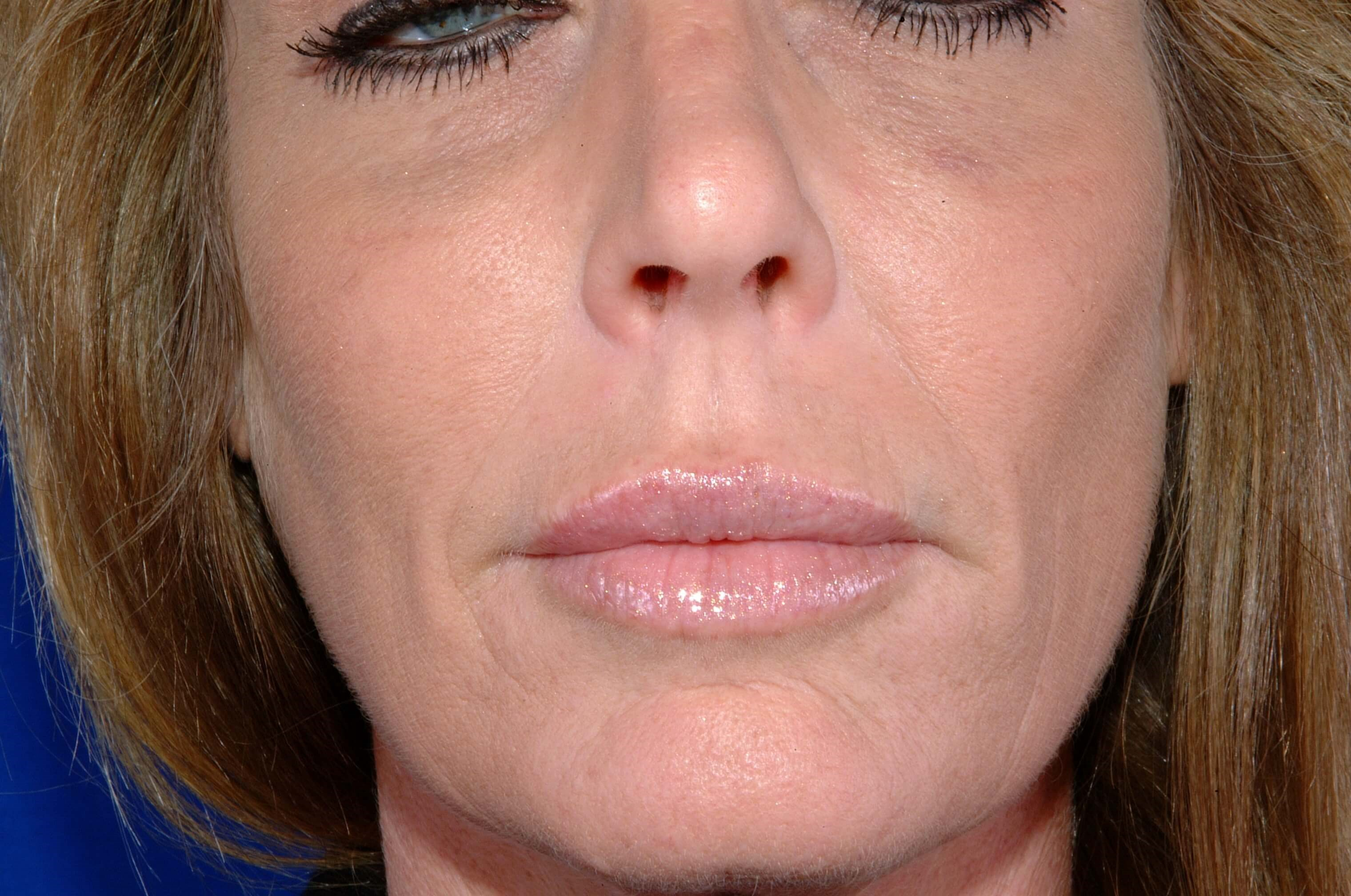 Newport Beach Lip Enhancements After Front View