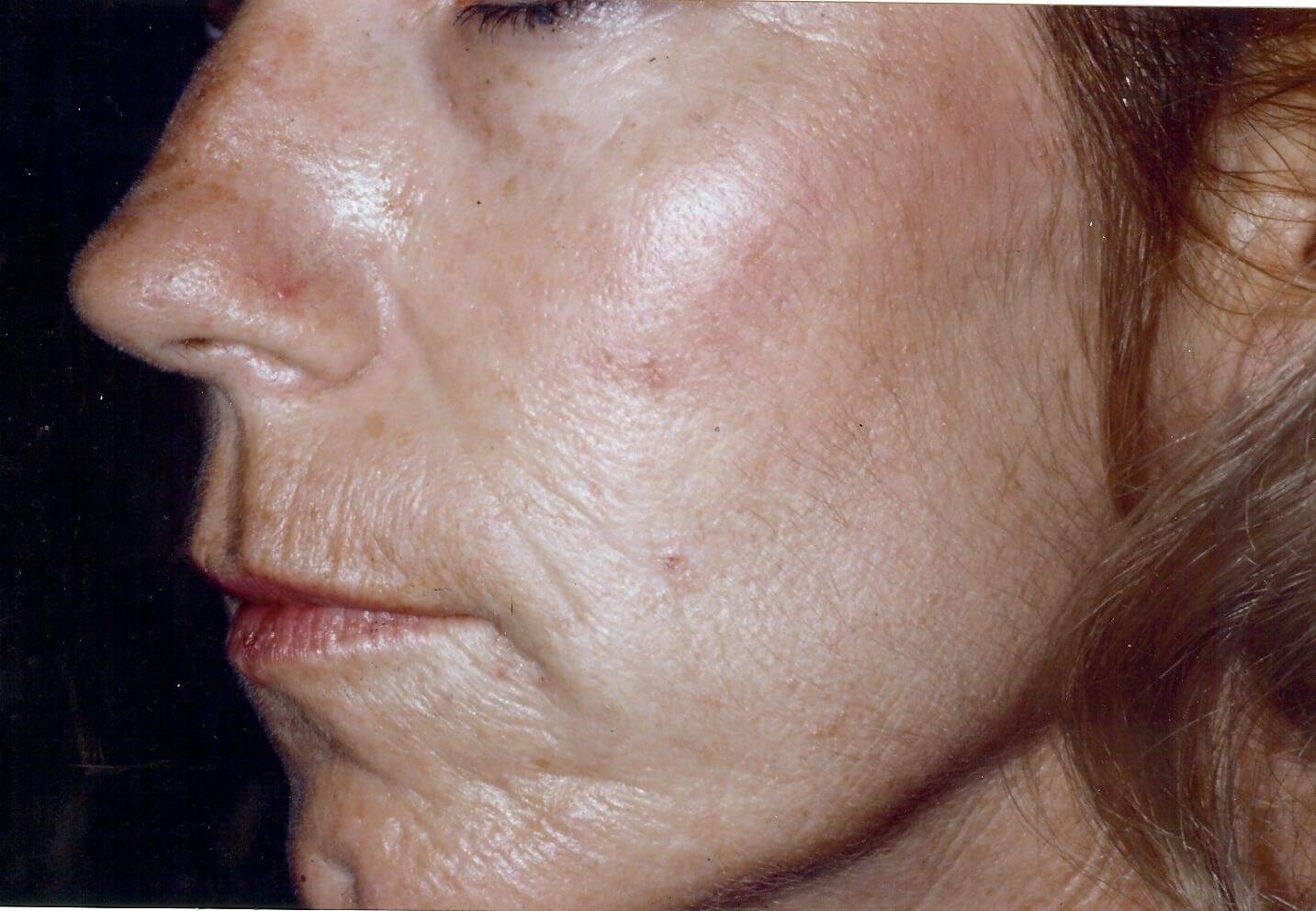 Newport Beach Chemical Peel Oblique View Before