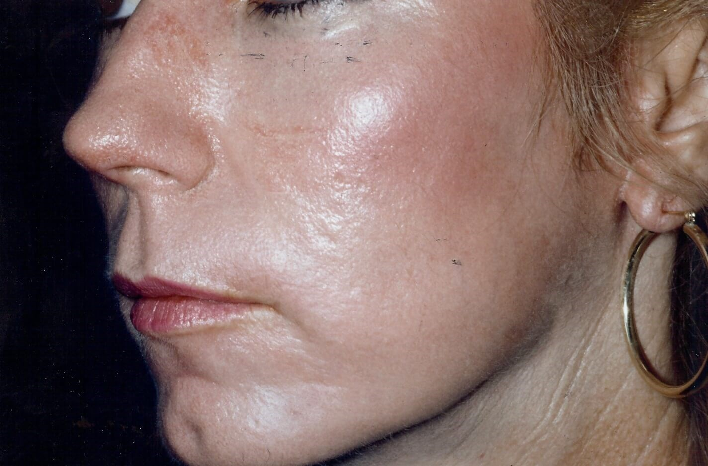 Newport Beach Chemical Peel Oblique View After