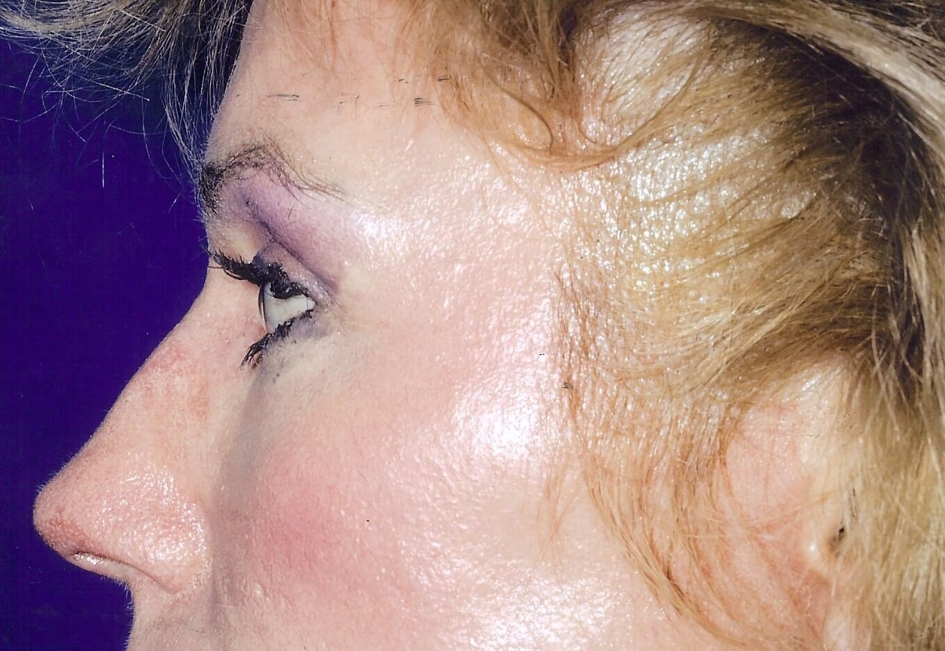 Newport Beach Chemical Peel Side View After