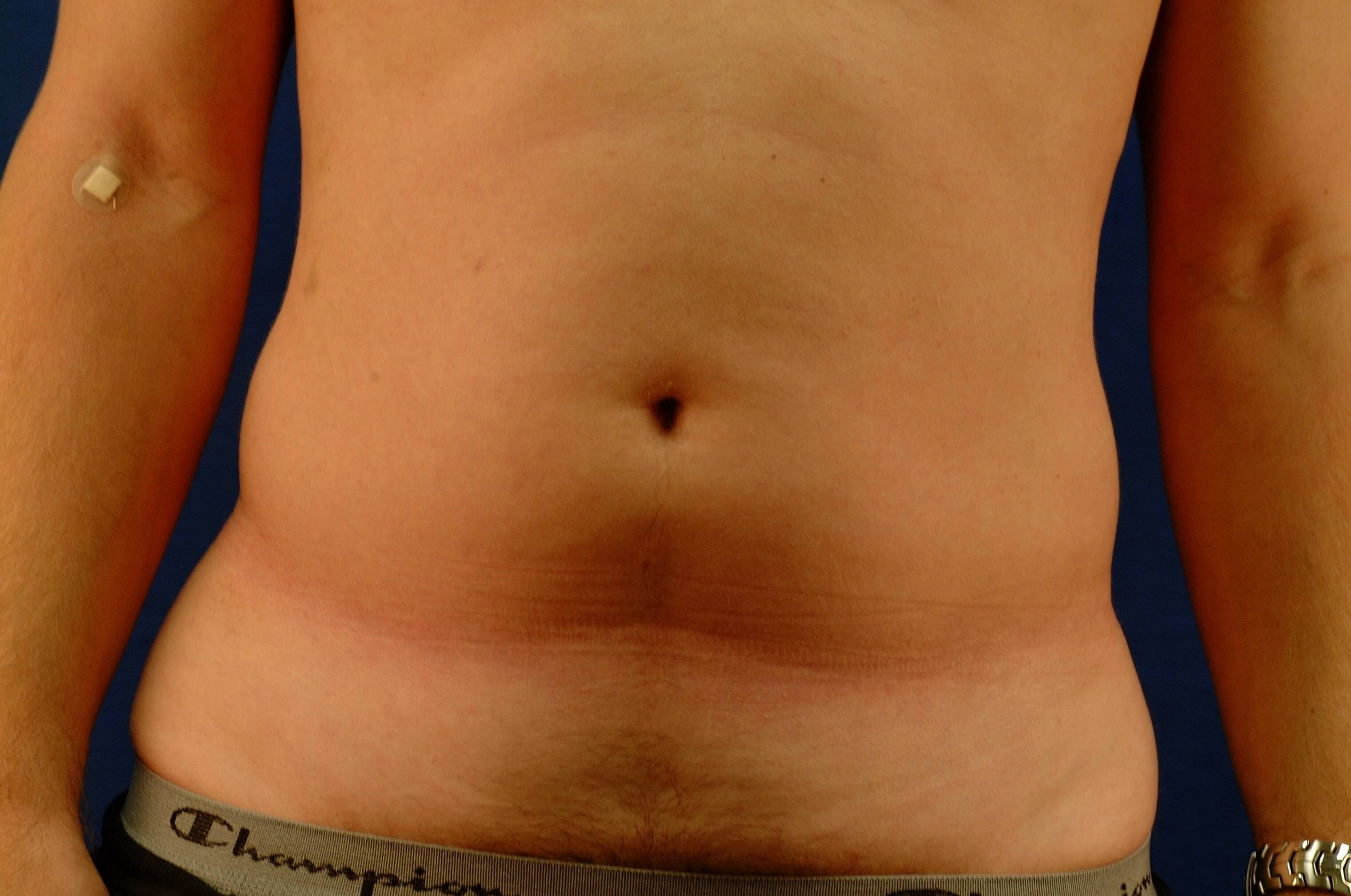 Newport Beach Liposuction Front View Before