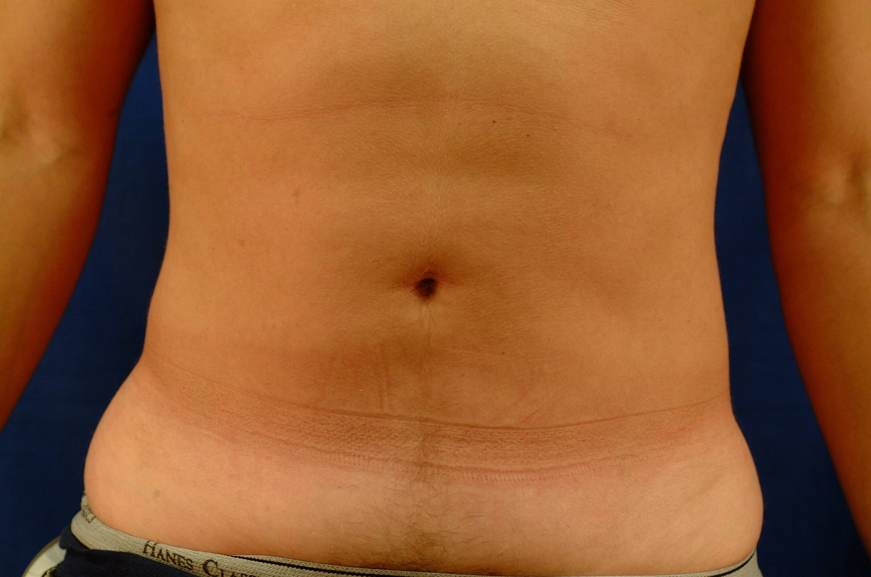 Newport Beach Liposuction Front View After