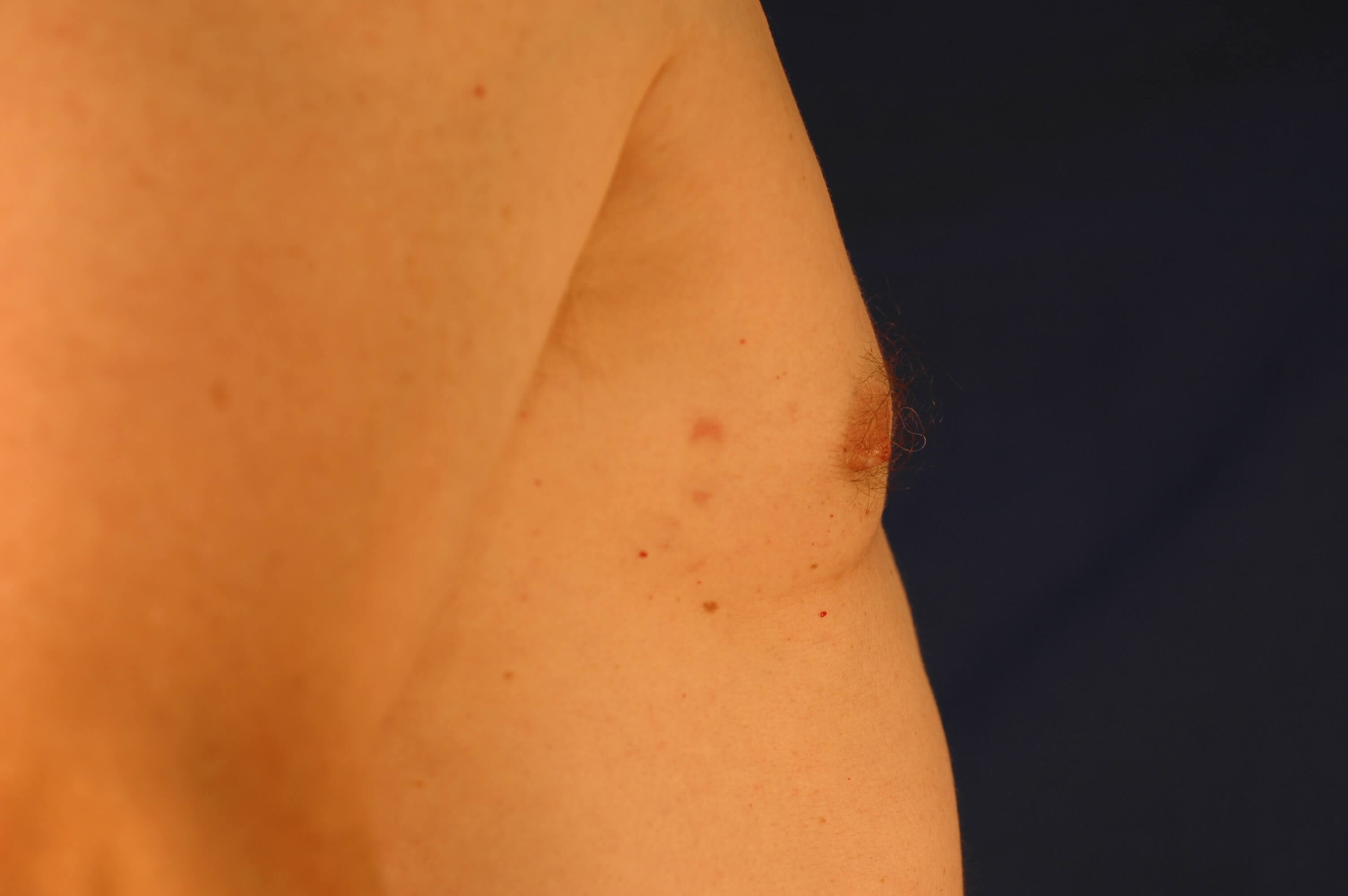 Newport Beach Gynecomastia Side View After