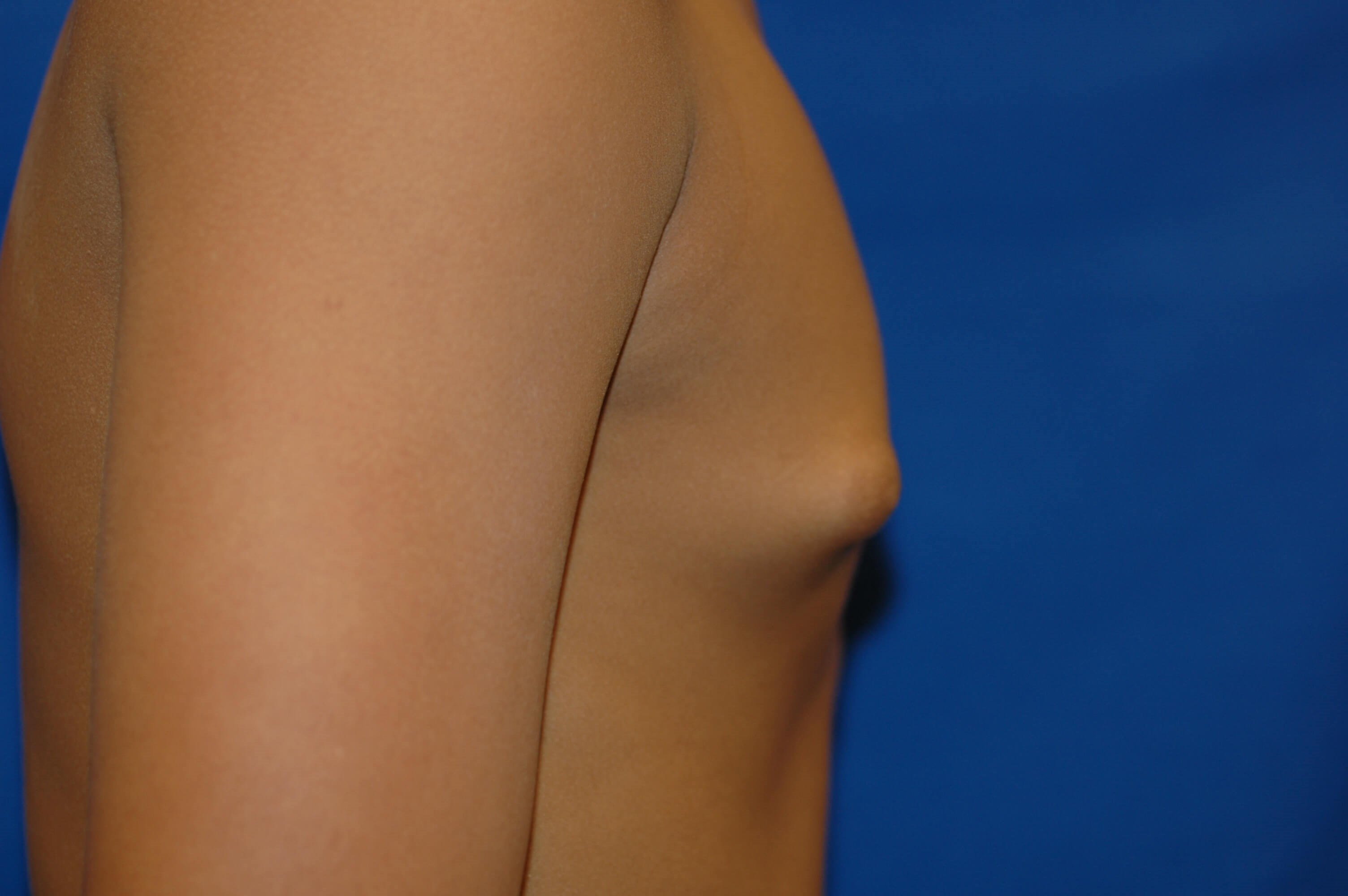Newport Beach Gynecomastia Side View Before