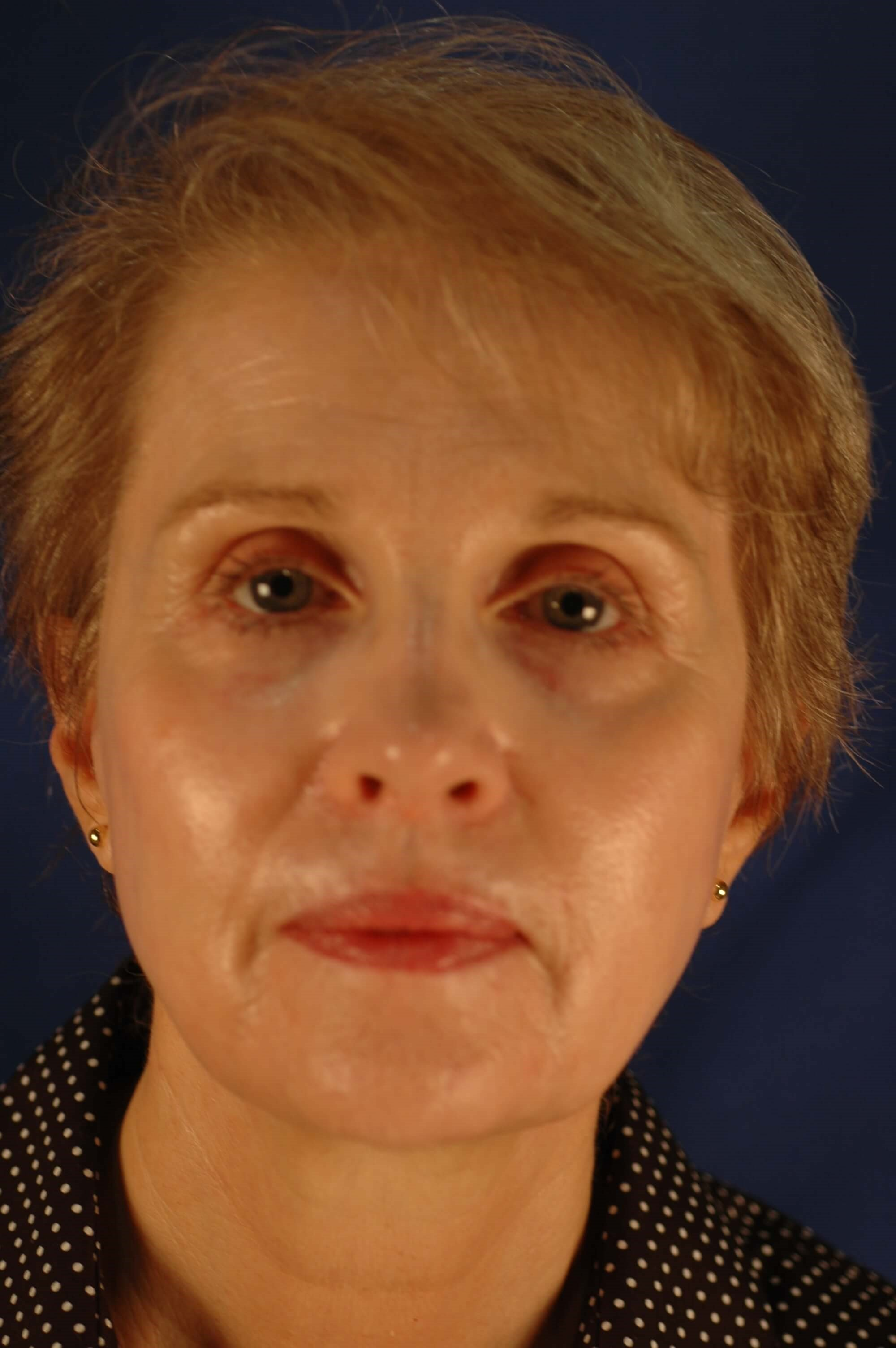 Dr. Bunkis Facial Rejuvenation Front View After