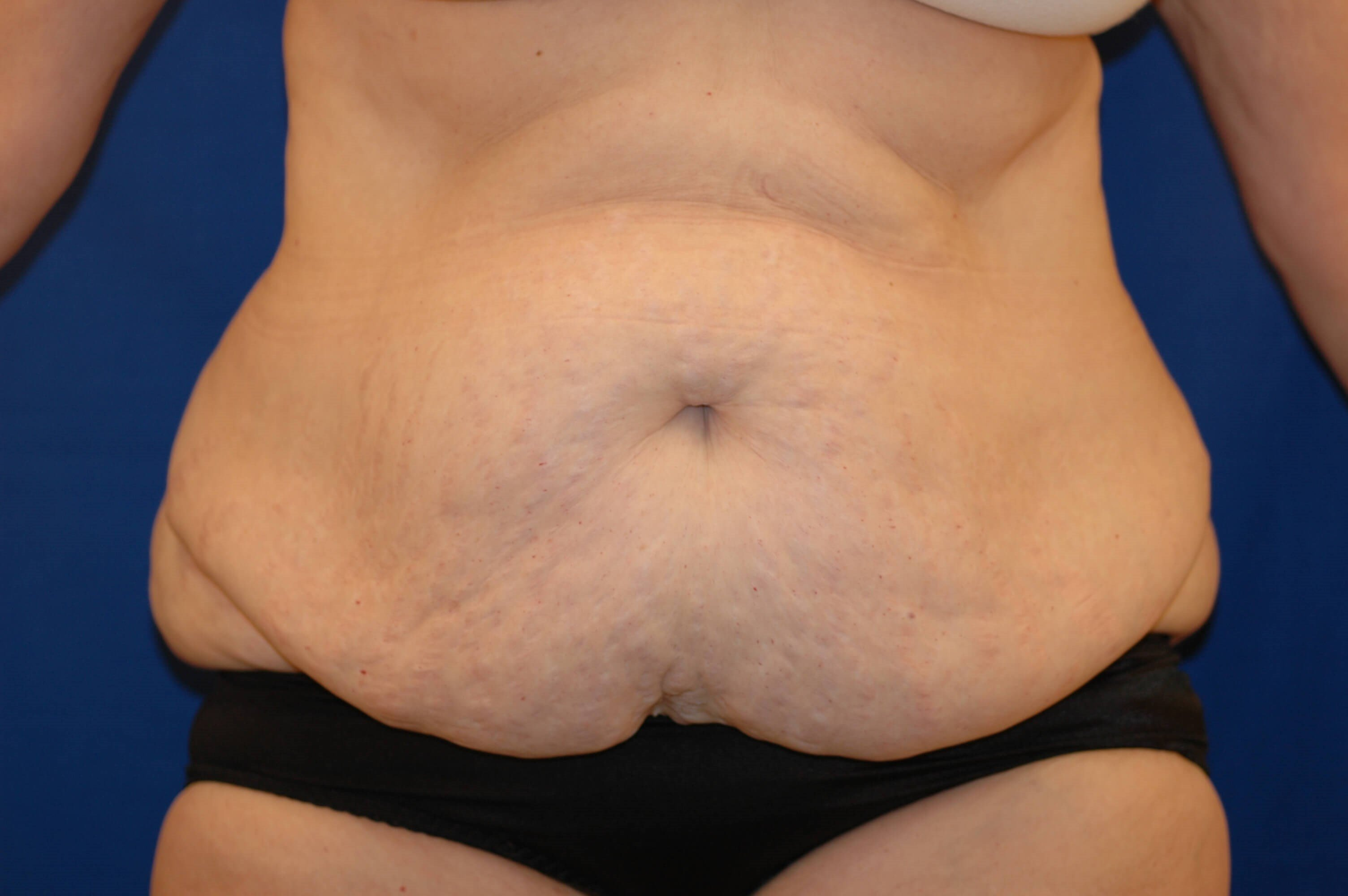 Newport Beach Body Contouring Front View Before