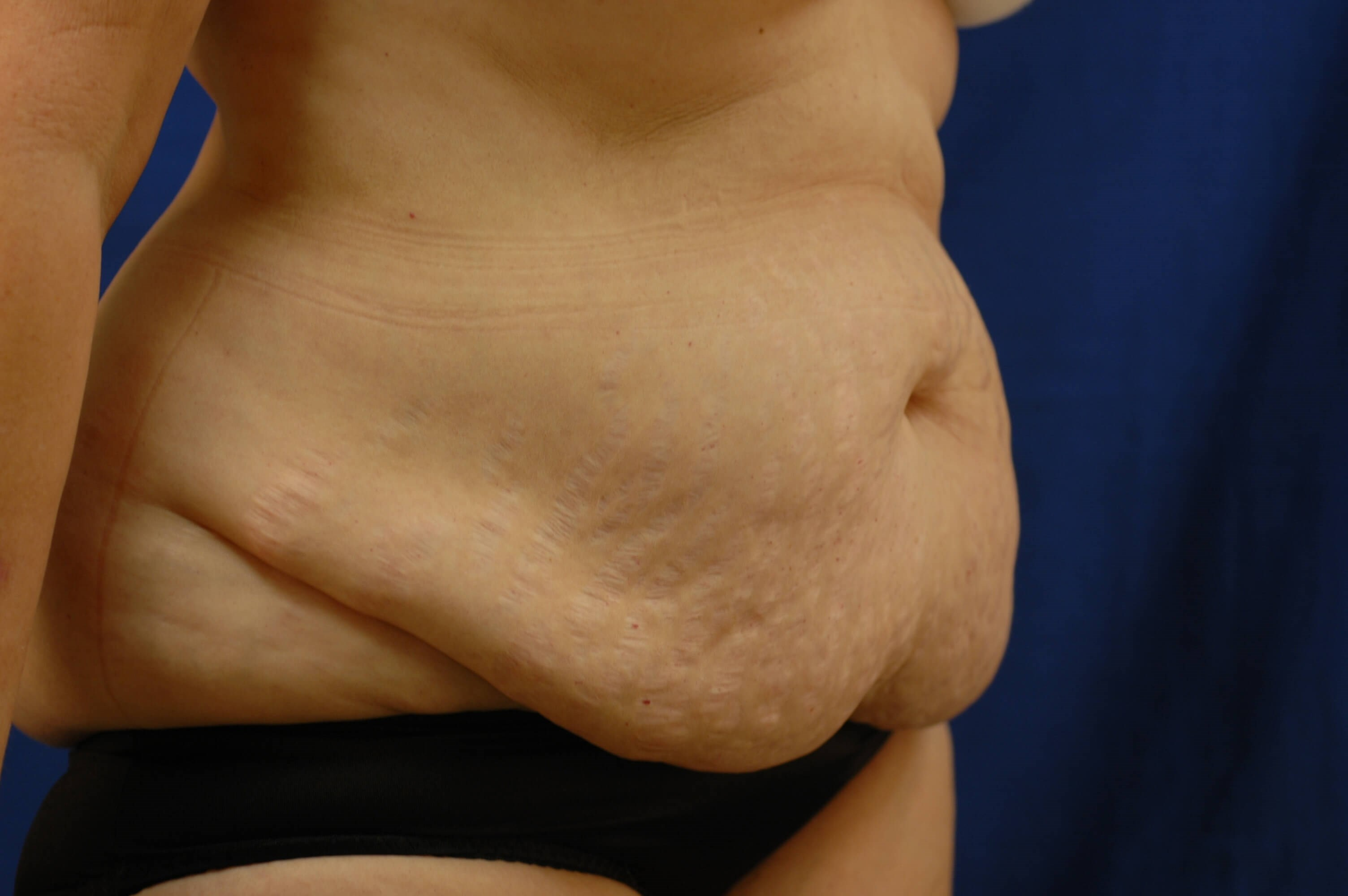 Newport Beach Body Contouring Oblique View Before