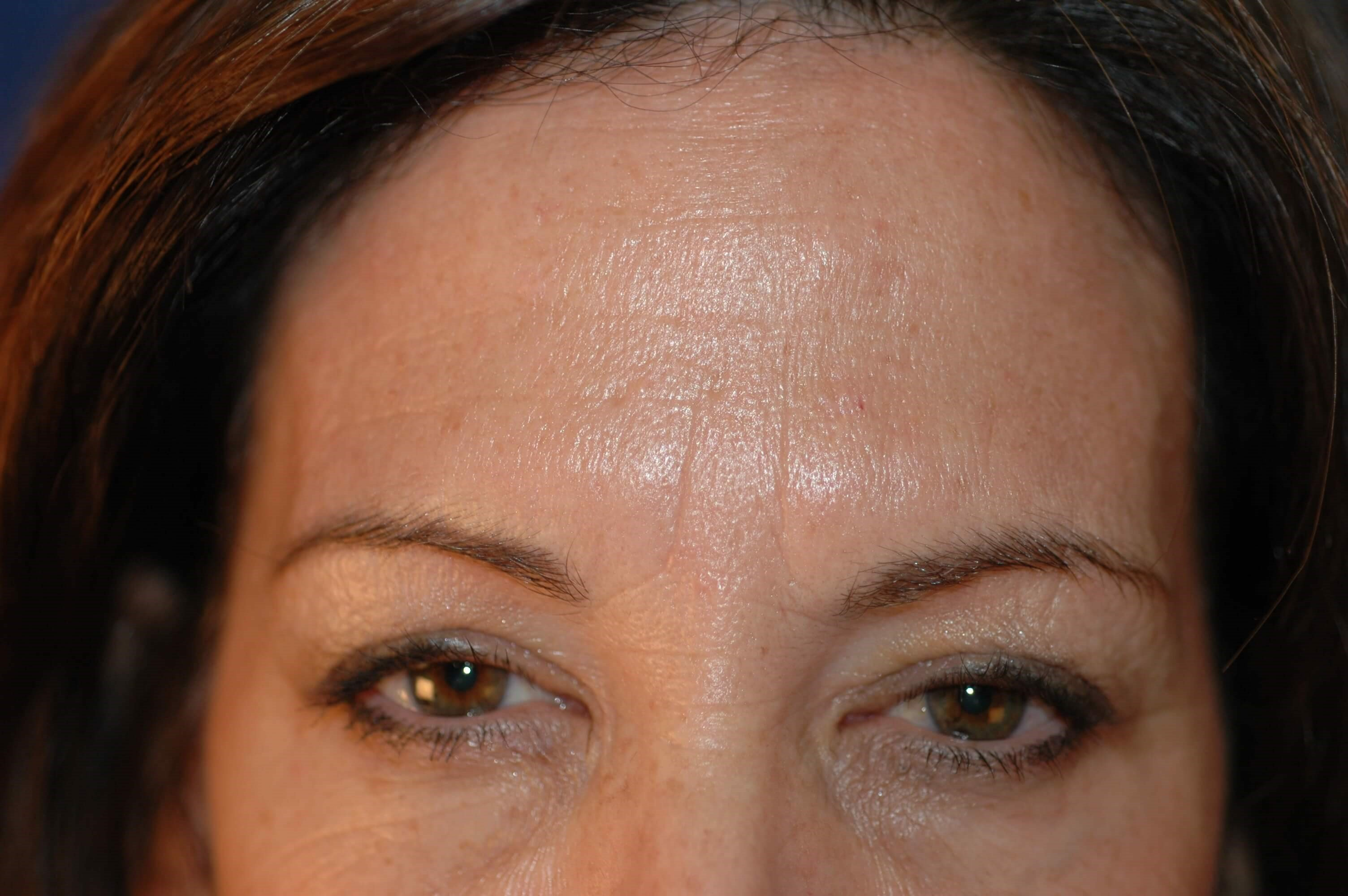 Newport Beach Botox Front View After