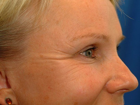 Newport Beach Botox Before Front View