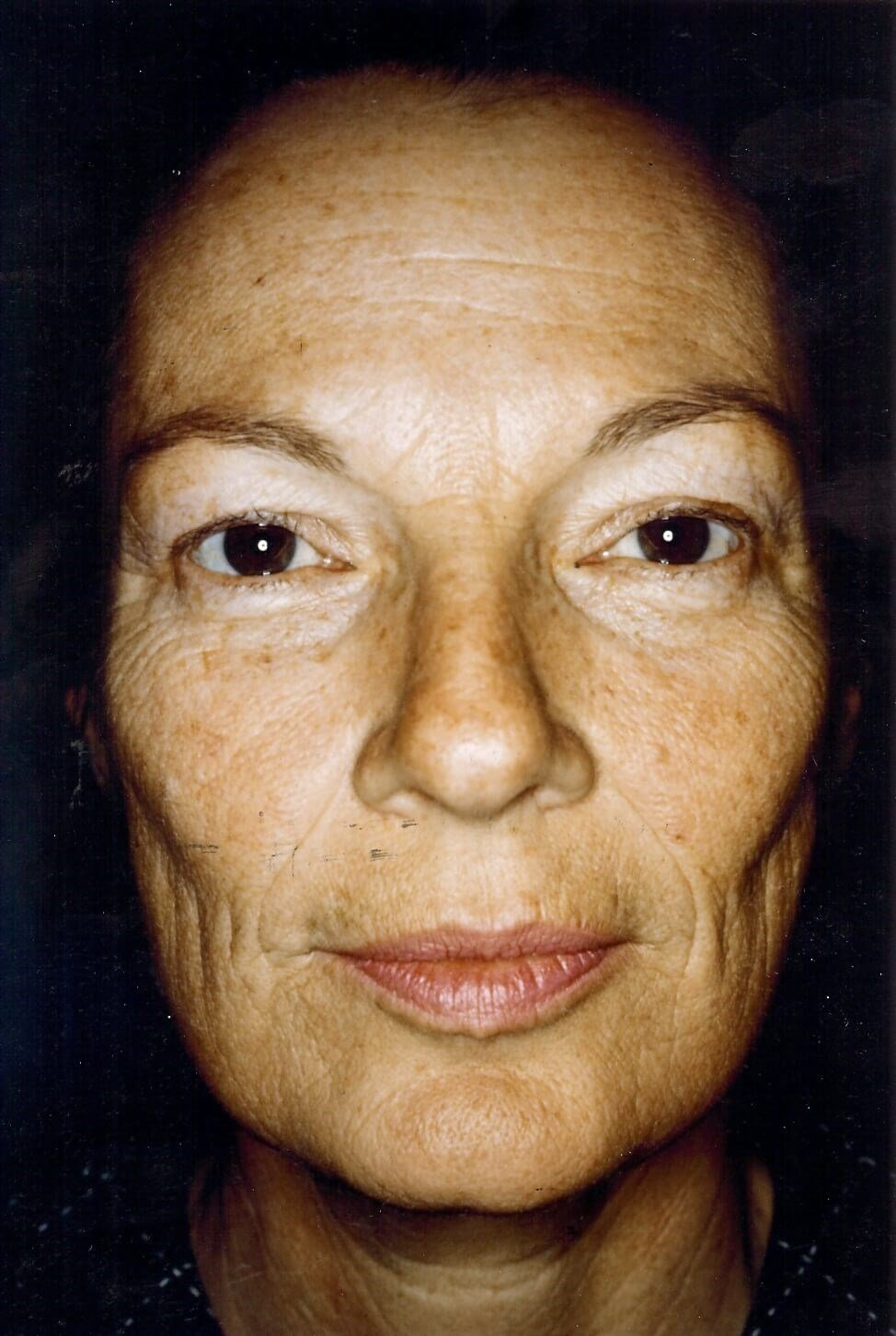 Dr. Bunkis Facial Rejuvenation Front View Before
