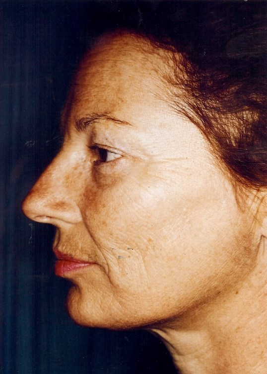 Dr. Bunkis Facial Rejuvenation Side View Before