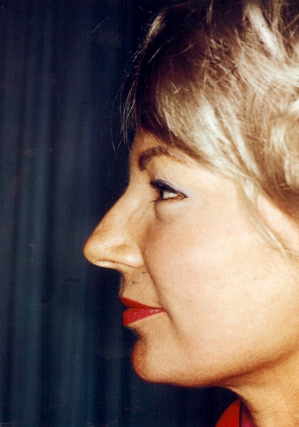 Dr. Bunkis Facial Rejuvenation Side View After
