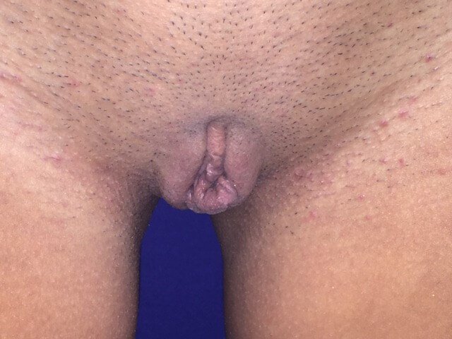 Newport Beach Labiaplasty Before Front View