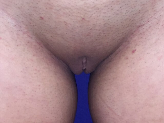 Newport Beach Labiaplasty After Front View