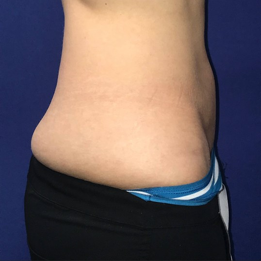 SculpSure on Flanks Before