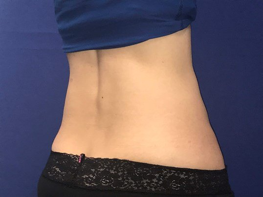 SculpSure for Flanks After