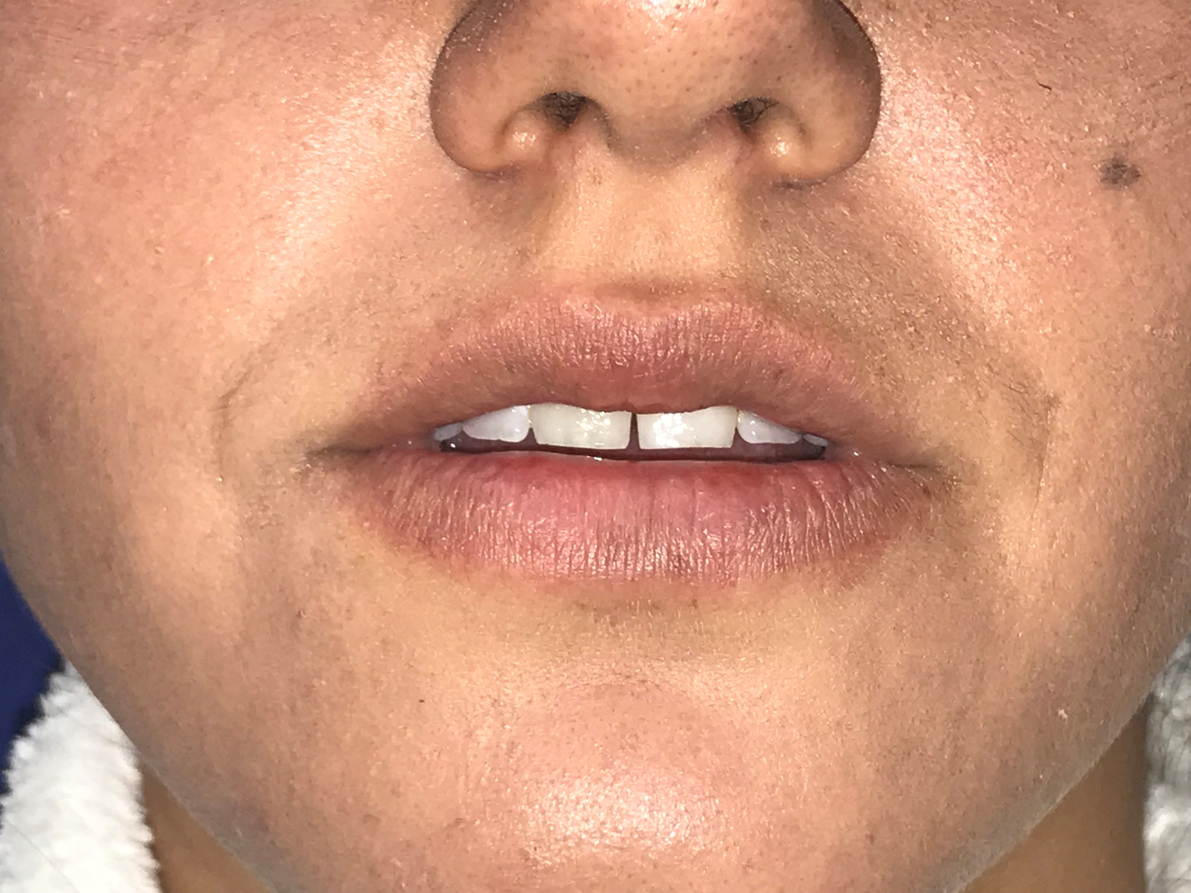 Lip Filler for Athletic Woman Before