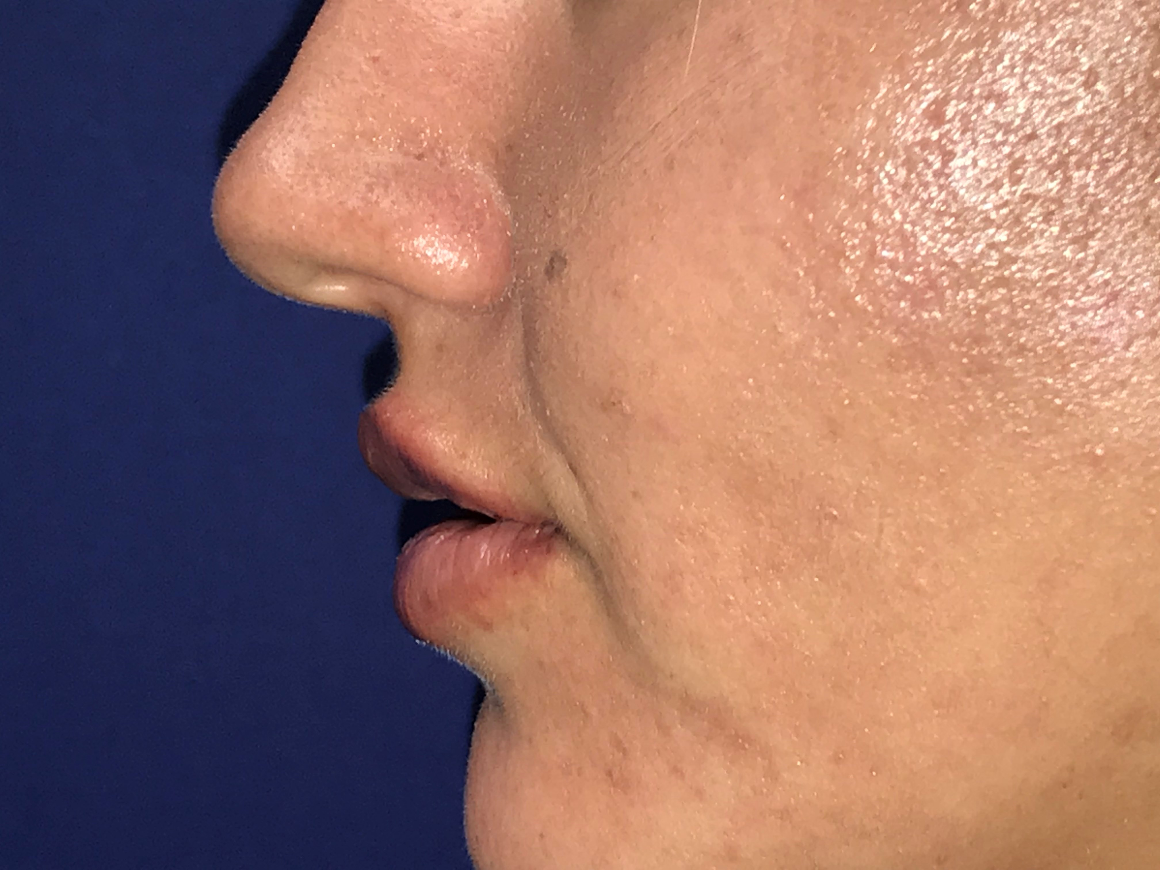Lip Filler for Athletic Woman After
