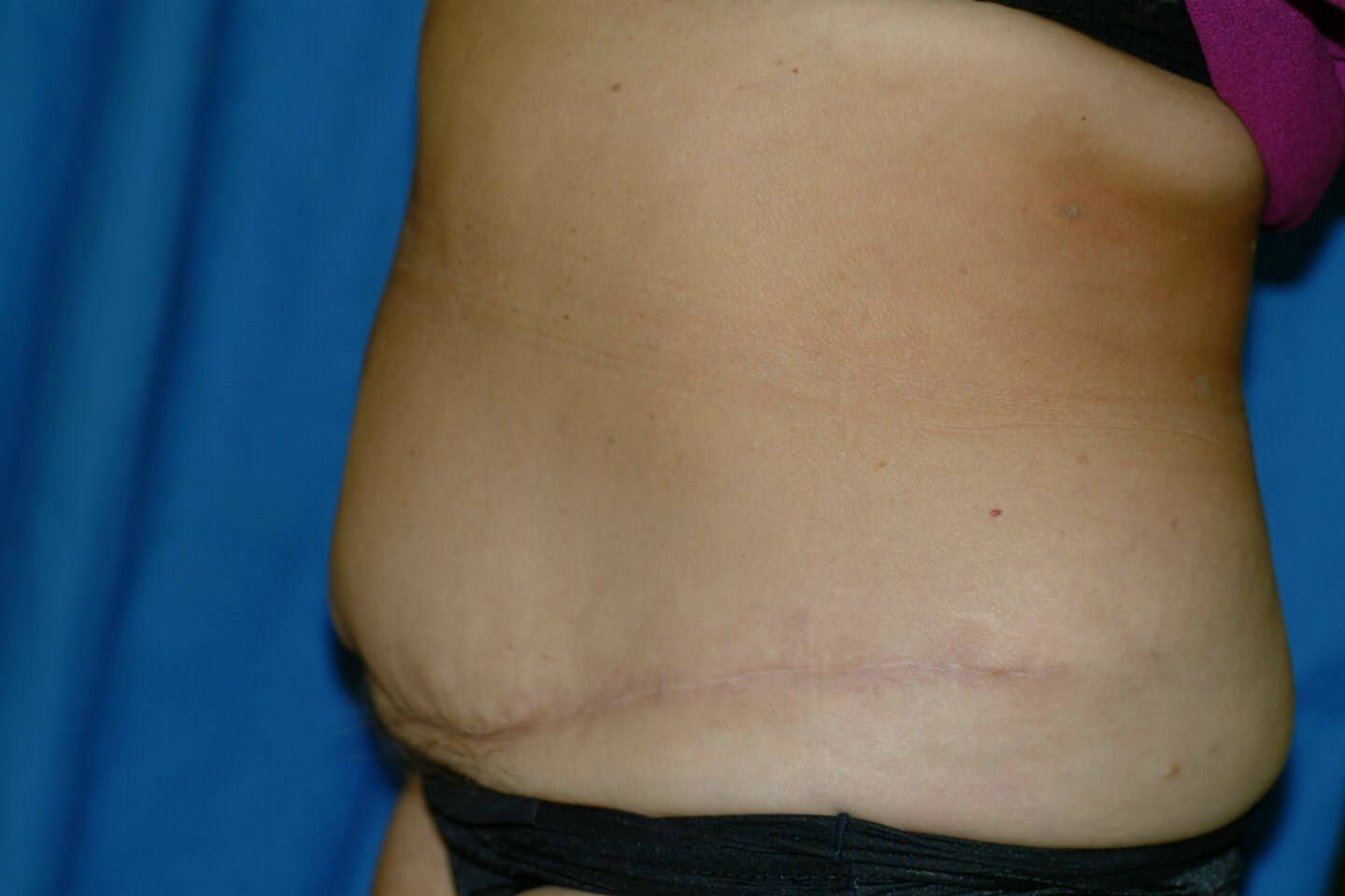 Newport Beach Tummy Tuck After