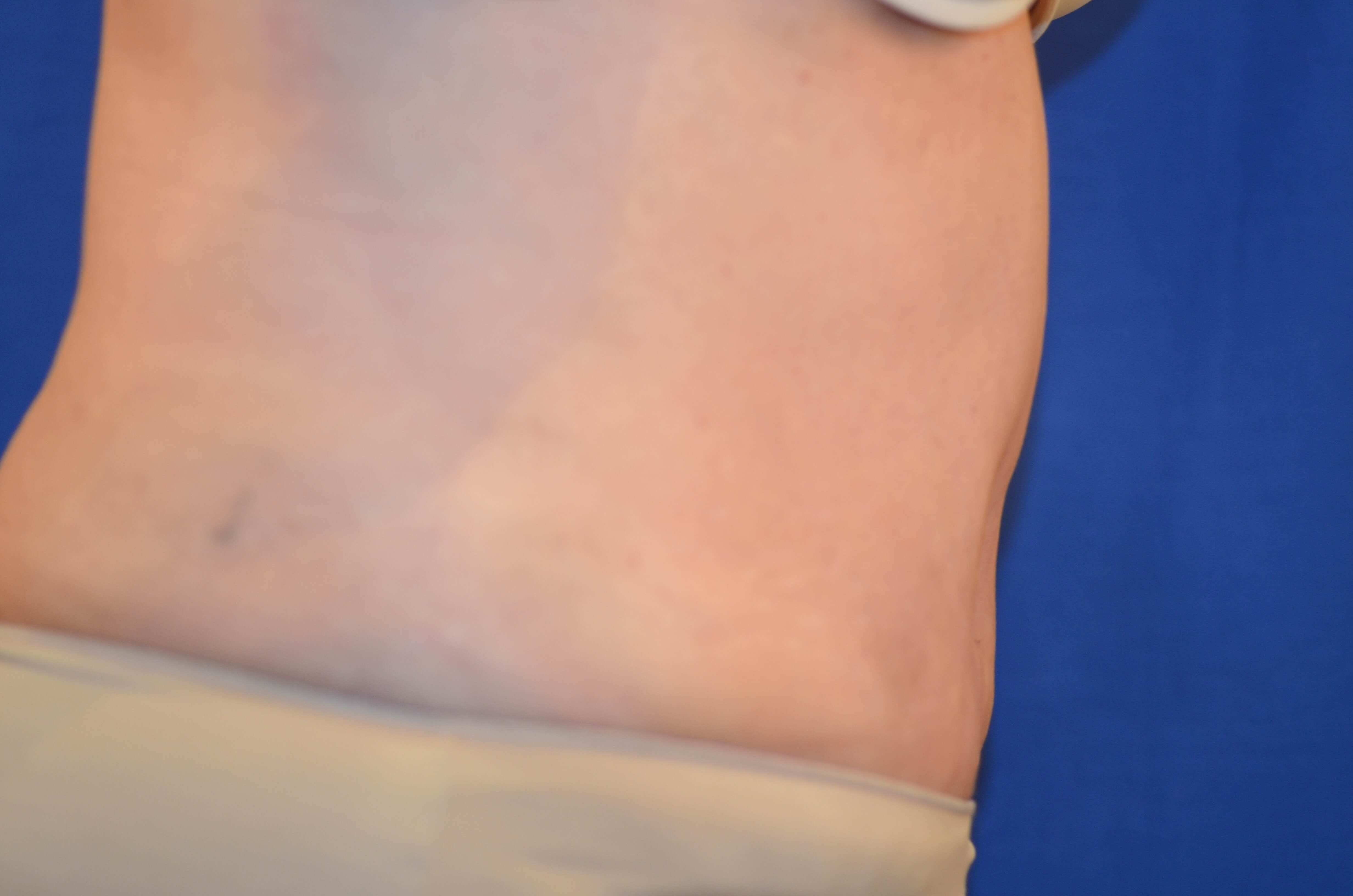 Newport Beach Tummy Tuck Lipo After Side View