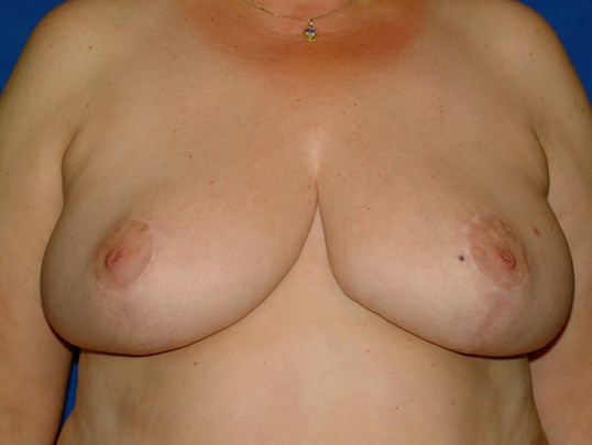 Newport Beach Breast Reduction After