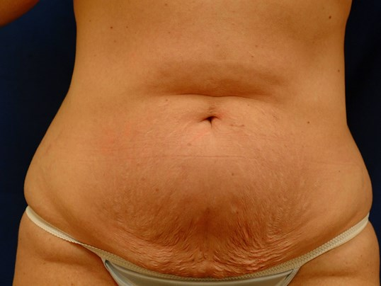 Newport Beach Tummy Tuck Front View Before