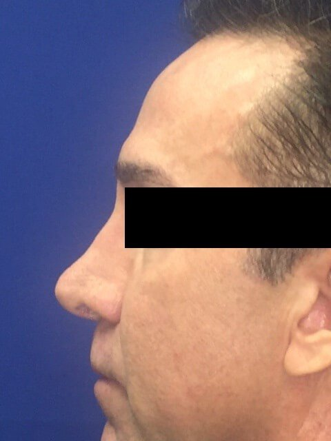 Non Surgical Rhinoplasty OCPS Before