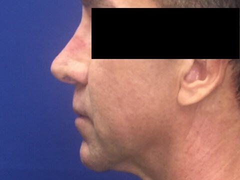 Non Surgical Rhinoplasty OCPS After