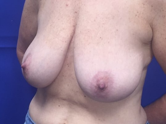 Newport Beach Mastopexy Before