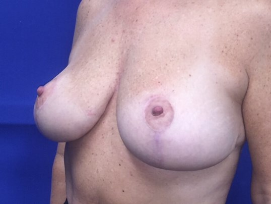 Newport Beach Mastopexy After