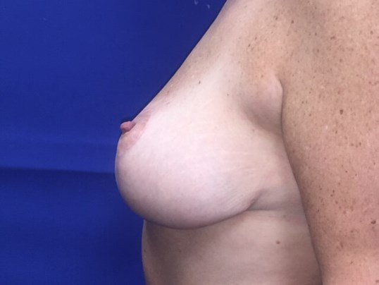 Newport Beach Breast Lift After