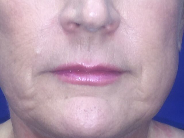 Newport Beach Lip Enhancement After