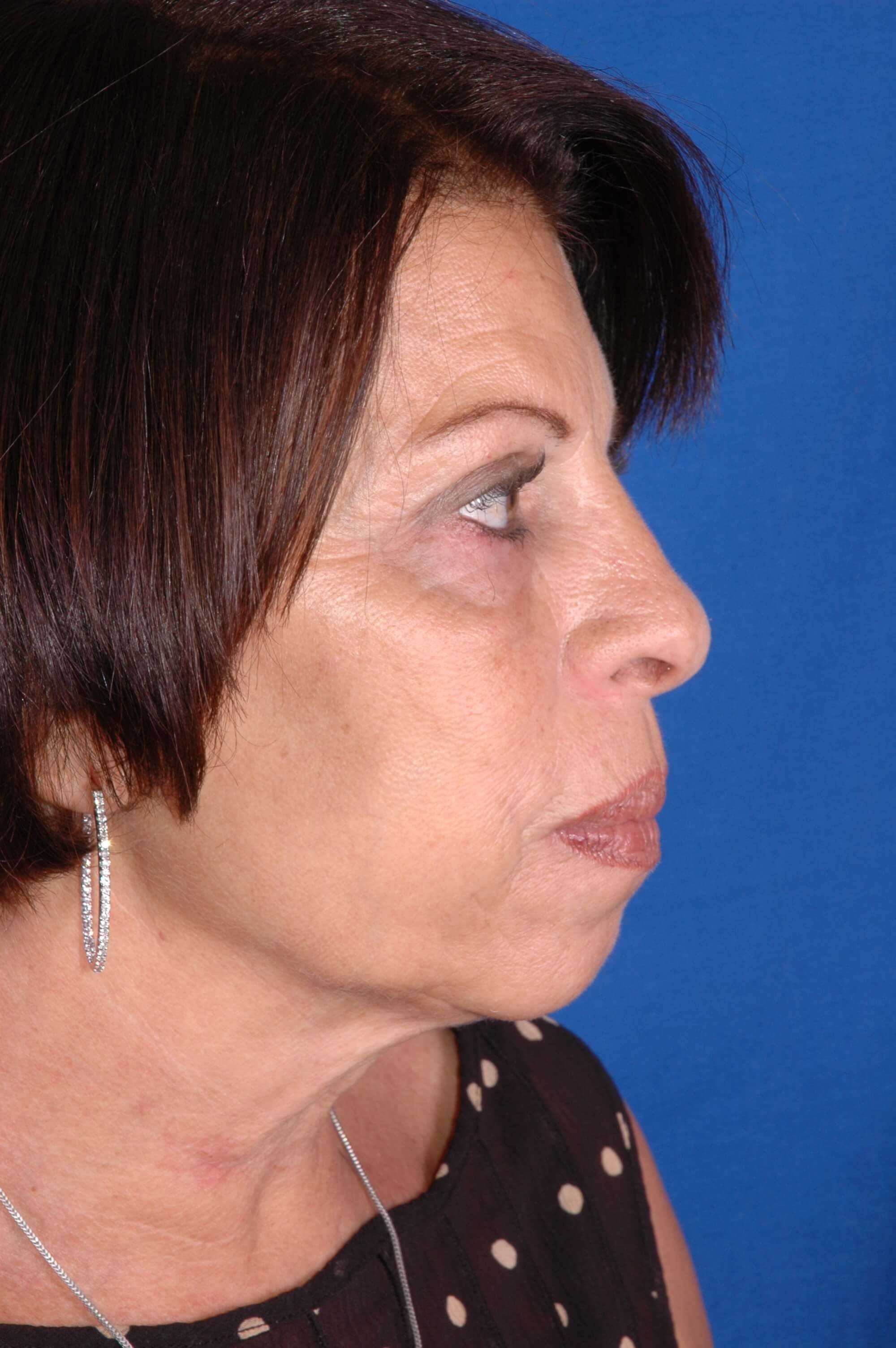 Minimally invasive facial surg After