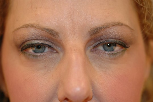 Newport Beach Brow Lift & Nose Before