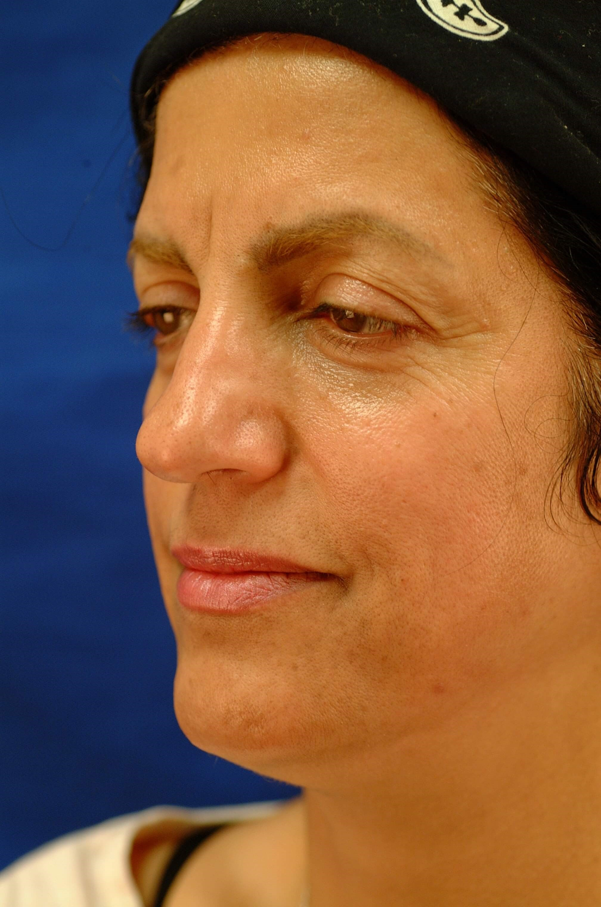 Brow Lift & Tip Rhinoplasty Before