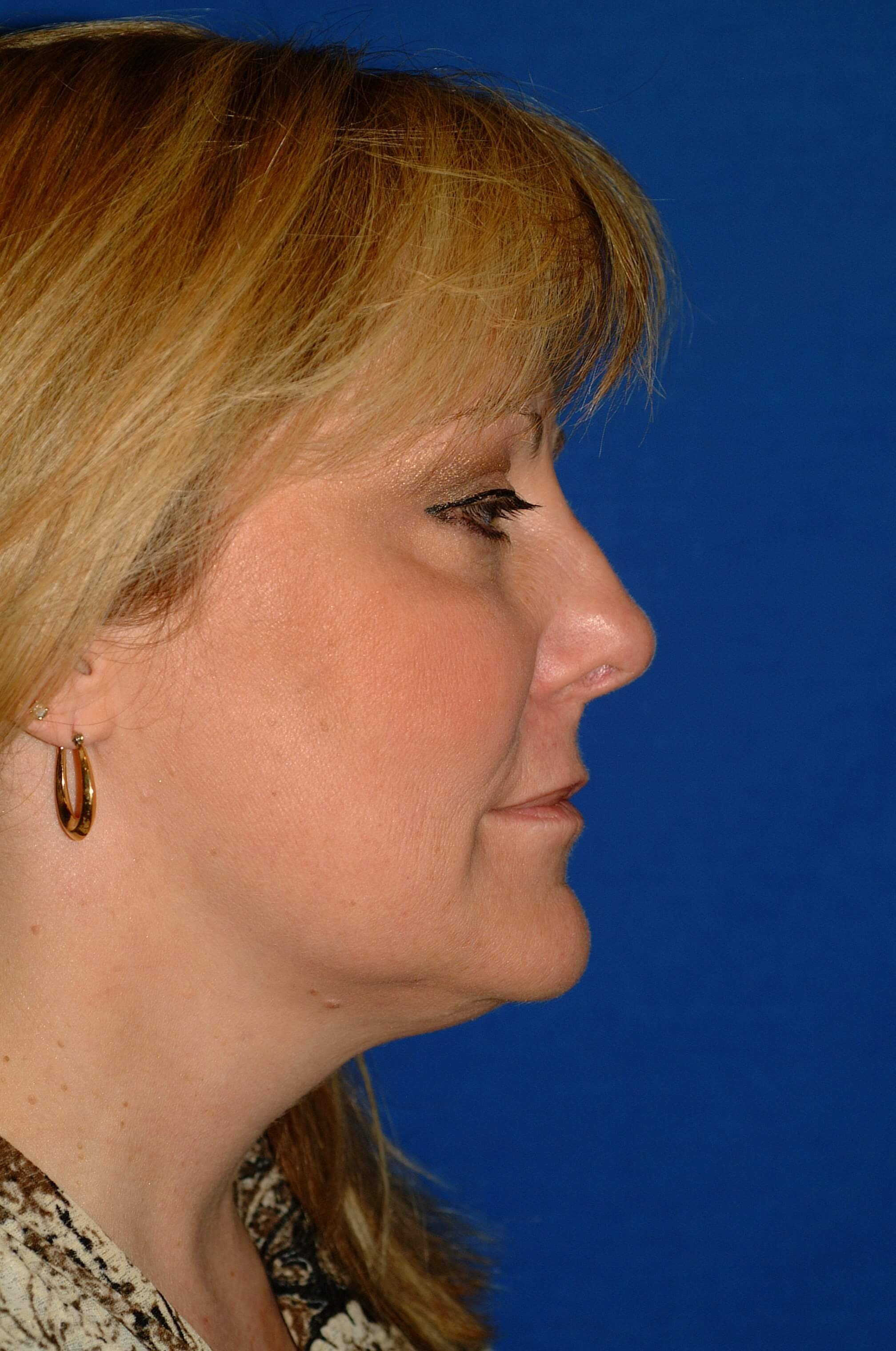 Newport Beach Brow Lift & Nose After