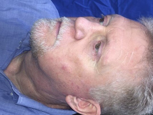 Newport Facial Rejuvenation After