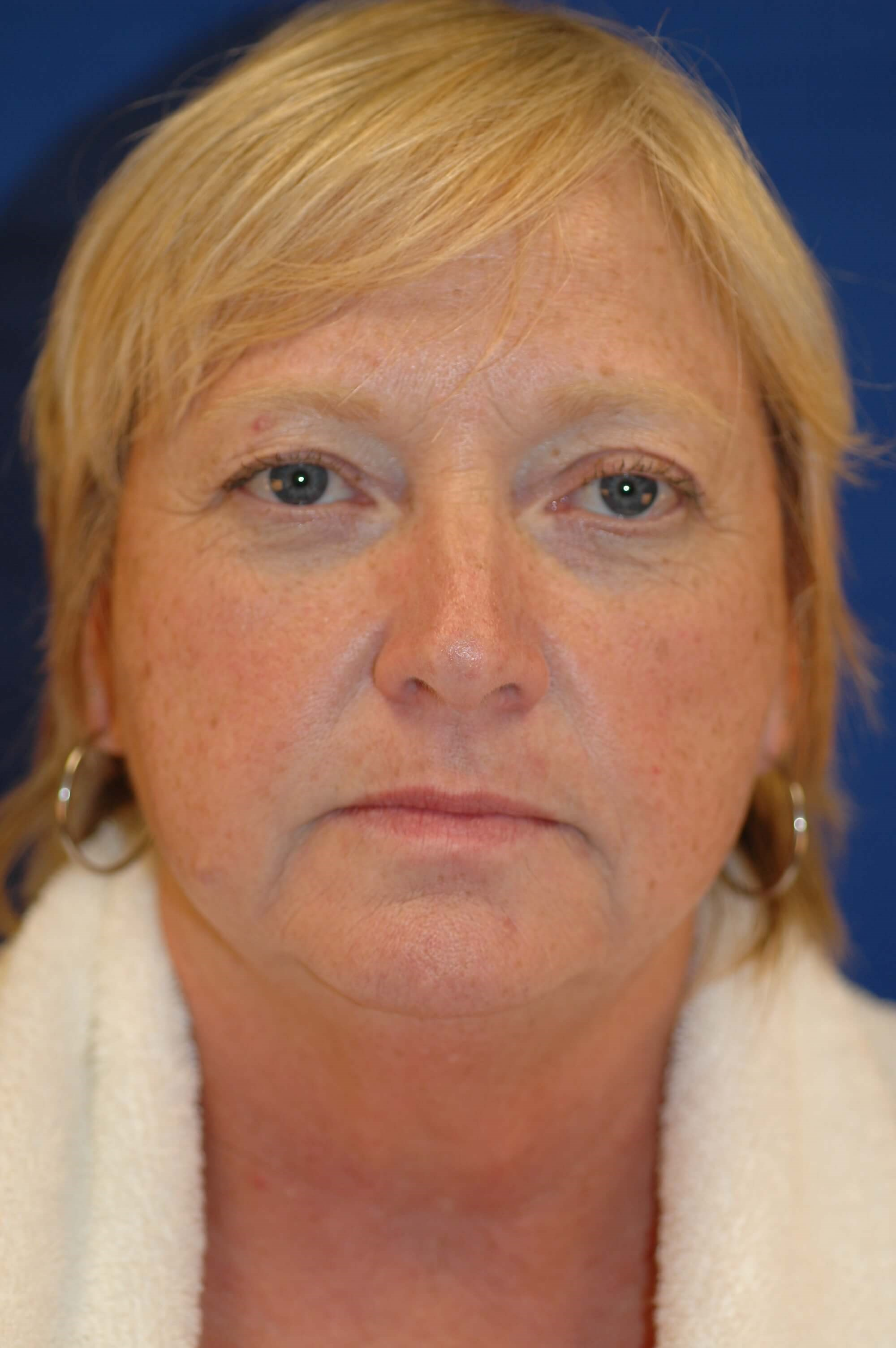 Newport Facial Rejuvenation Before