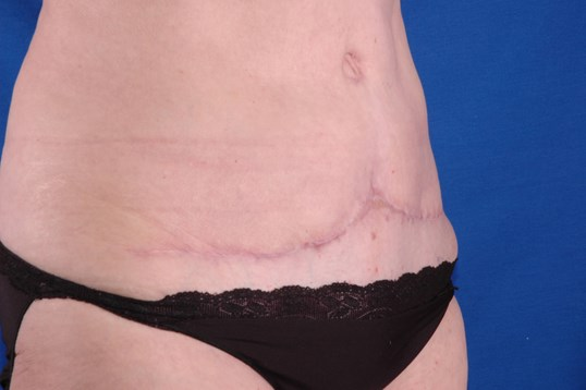 Newport Beach Abdominoplasty After Oblique