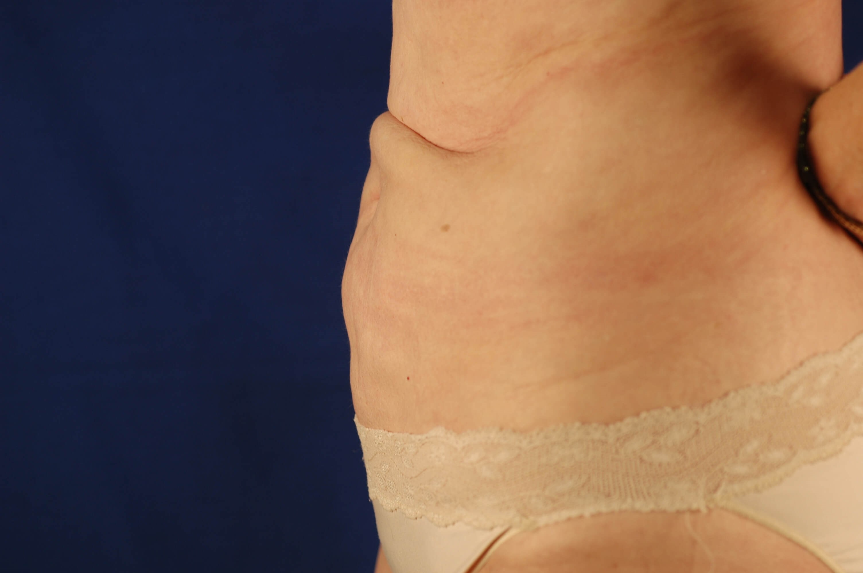 Newport Beach Abdominoplasty Front View Before
