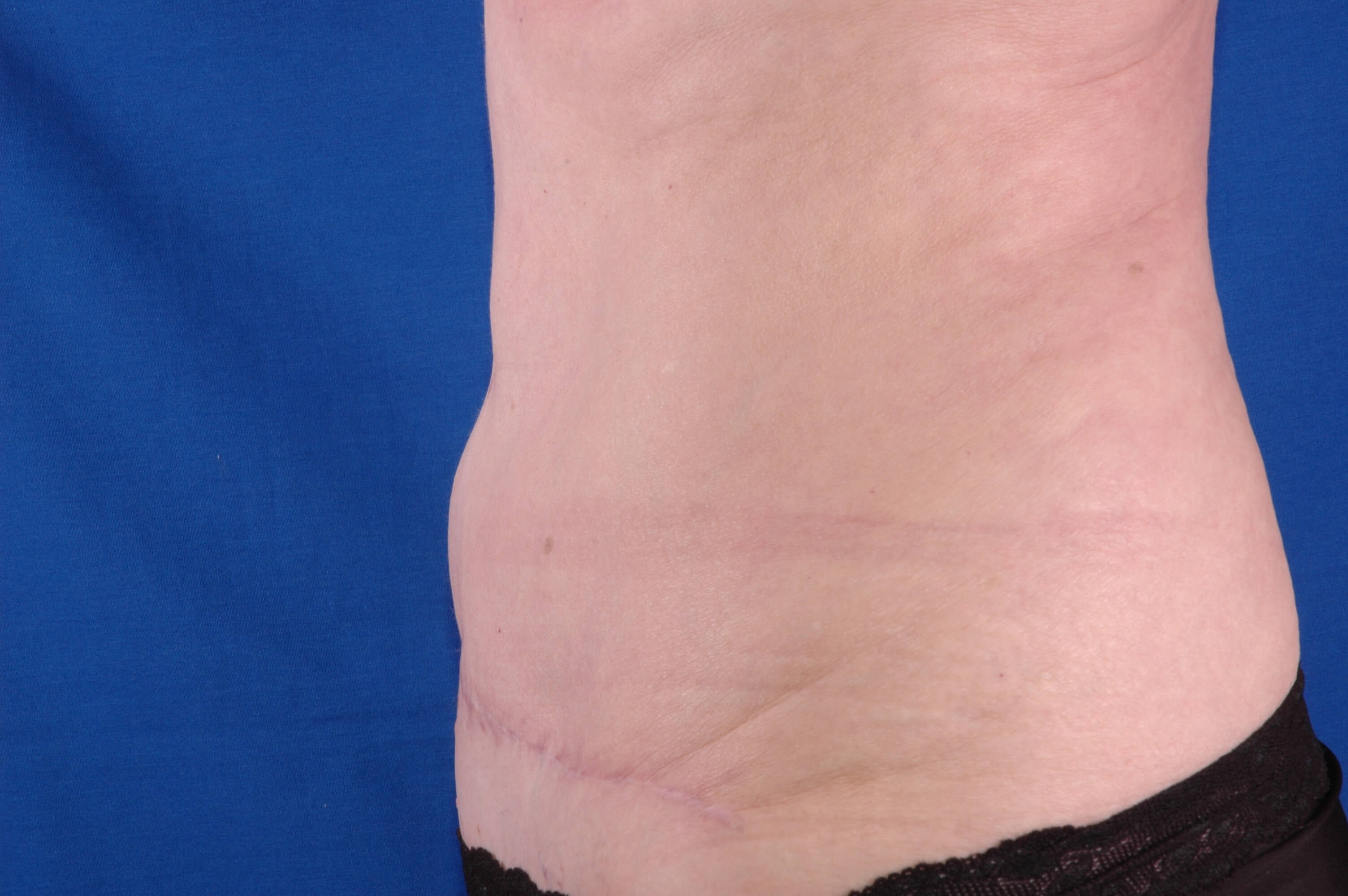 Newport Beach Abdominoplasty Front View After