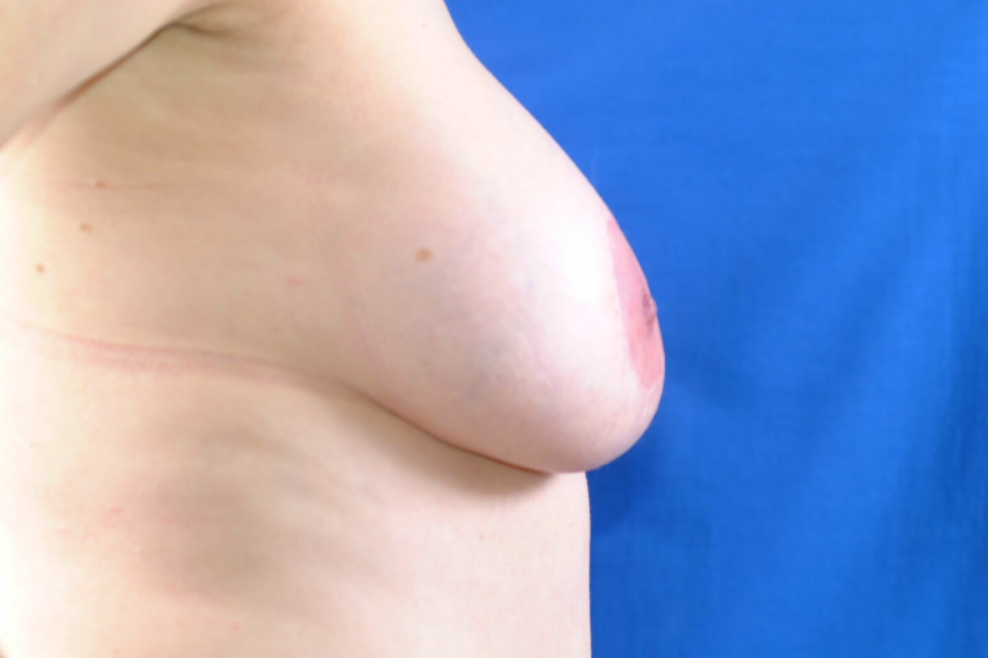 Explantation and Breast Lift Before