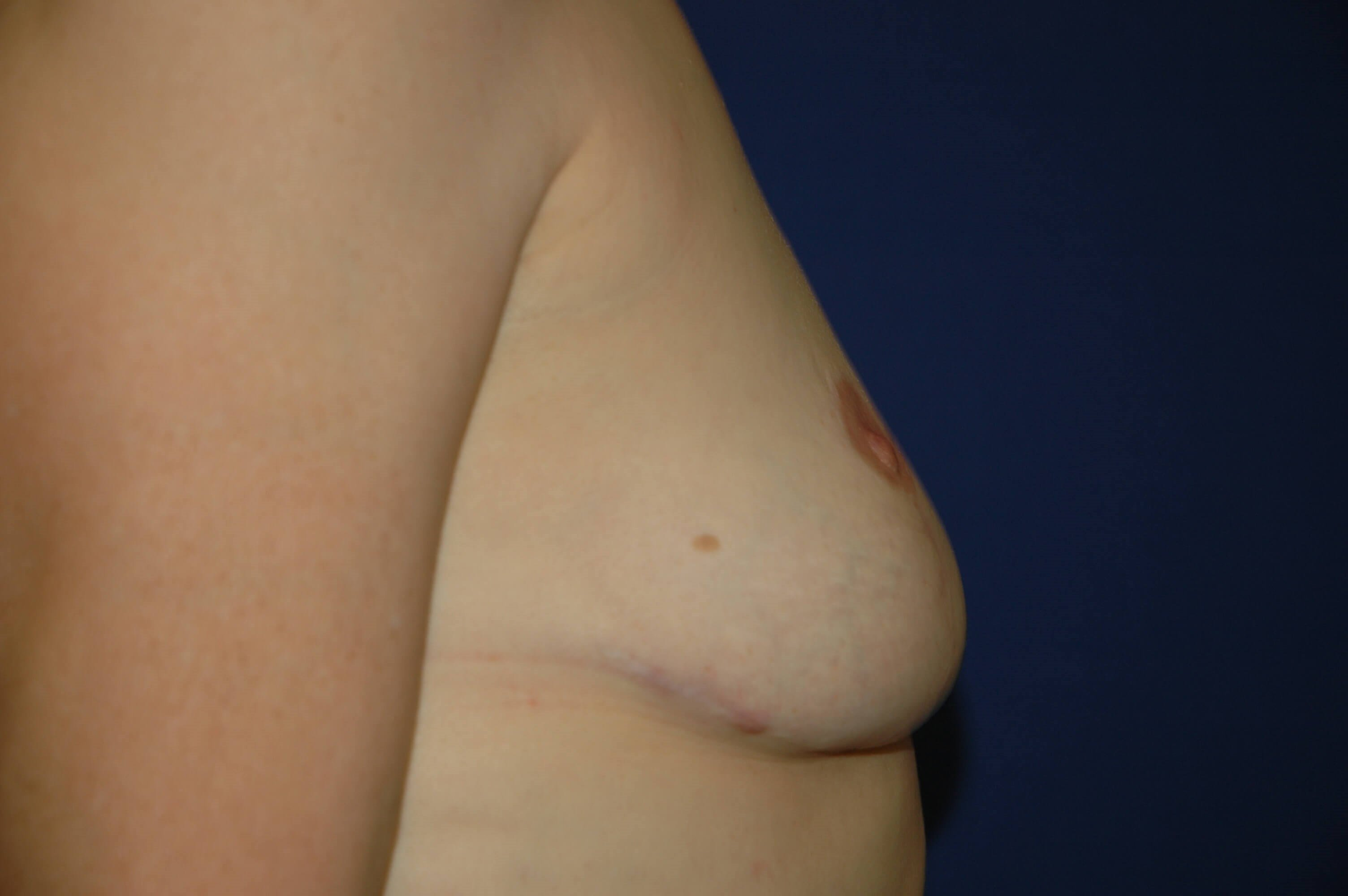 Explantation and Breast Lift After