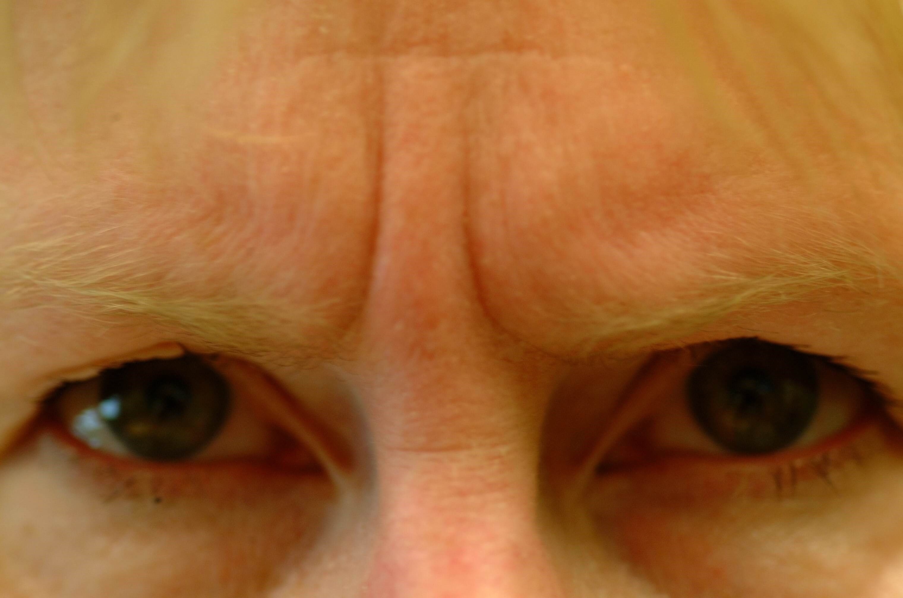 Dr. Bunkis Brow Lift OCPS Before