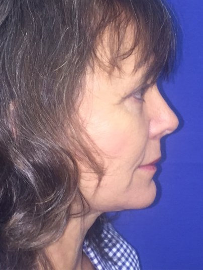 Newport Facial Rejuvenation After Side View